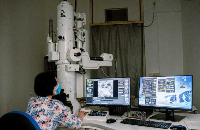 Újgenerációs elektronmikroszkóppal kutatnak a PTE-n